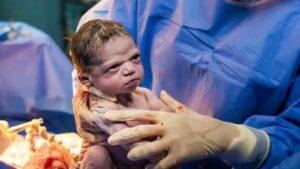 نوزاد تازه متولد شده چگونه رفتار می کند-نوزاد تازه بدنیا آمده